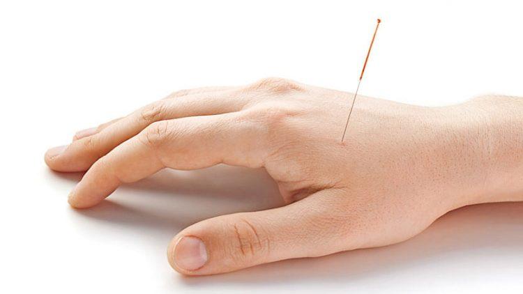 acupuntura-clinica-medica-do-porto