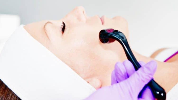 dermaroller ou terapia com micro-agulhas