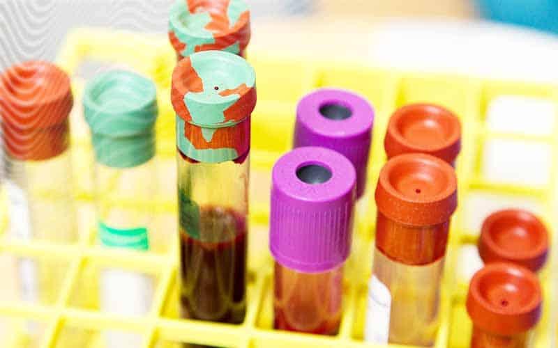 4-analises-avaliacao-sindrome-ovario-poliquistico-